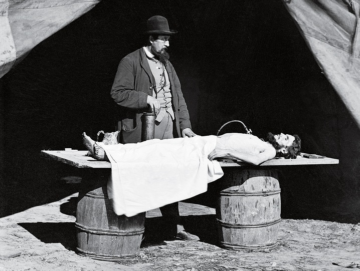 Embalming the Remains