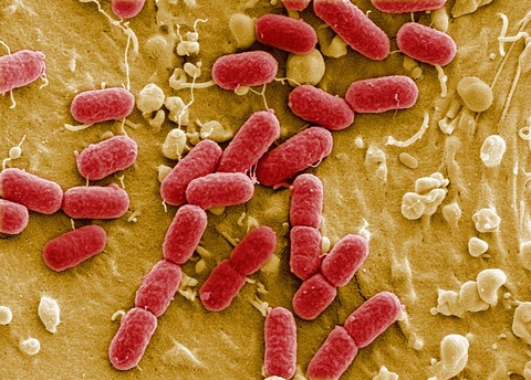 In this handout photo provided by the Helmholtz Center for Research on Infectious Diseases an EHEC bacteria is visible on May 30, 2011 in Berlin, Germany. (Photo courtesy Manfred Rohde, Helmholtz-Zentrum fuer Infektionsforschung (HZI)/Getty Images)